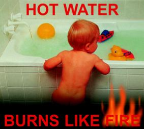 hot water burns